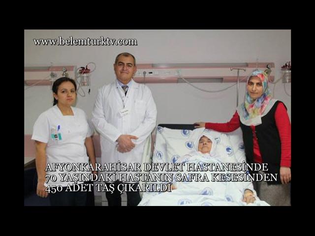 Afyonkarahisar Devlet Hastanesinde Bir Hastadan 450 Taş Çıkarıldı