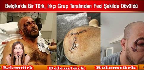 Belçika'da Türk Vatandaşı Irkçı Grup Tarafından Feci Şekilde Dövüldü